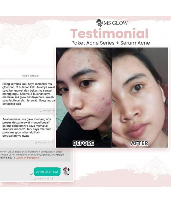 Serum Acne Msglow original|Serum Jerawat